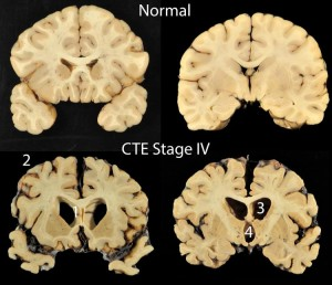 A recent study of the brains of former NFL players showed almost all had some level of brain trauma.