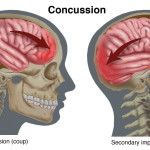 What are concussions and how should you handle them?