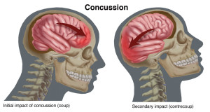 Concussion-Newsletter