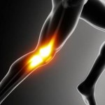 Everything Athletes Need to Know About Preventing and Treating ACL Injuries