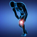 The Best and Worst Things an Athlete Can Do to Recover from Patellar Tendonitis